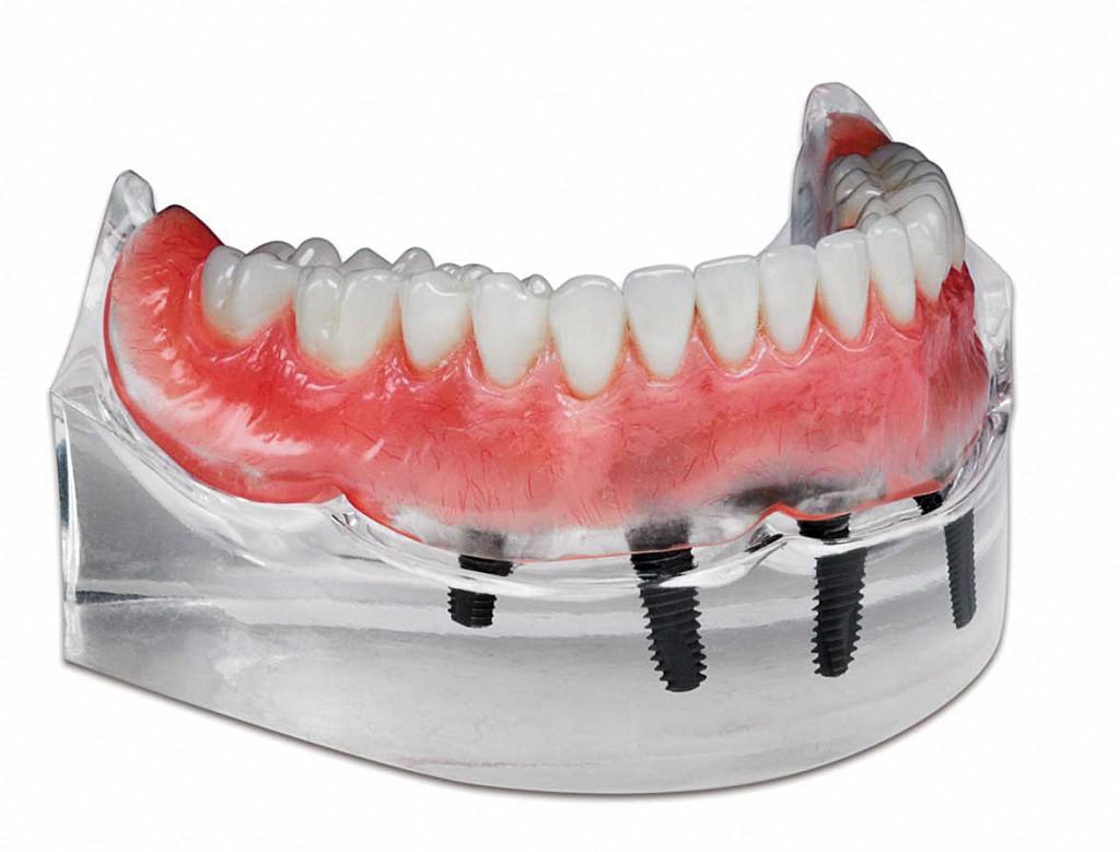 Portrait-IPN-Premium-Denture-Teeth
