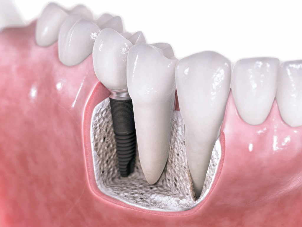 dental-implants-costa-rica1